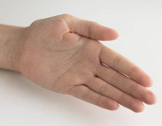 تشخیص بیماری ها با مشاهده کف دست