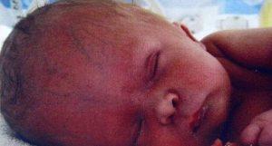 ماجرای معجزه برای نوزادی که بدون مغز متولد شد!
