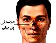 شکستگی بینی بر اثر ضربه و کج شدن بینی