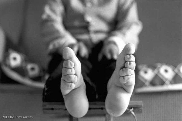 بستن پا