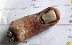 پیدا شدن انگشت بریده انسان در سوپ