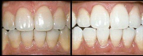 بلیچینگ دندان و انواع روش بلیچینگ دندان