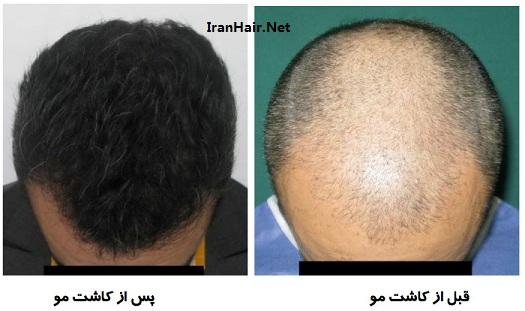 روش های کاشت مو در ایران