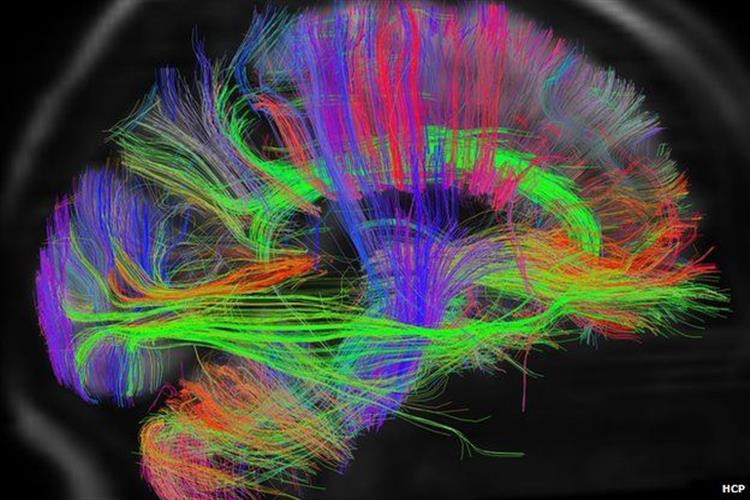 اثر افسردگی بر مغز