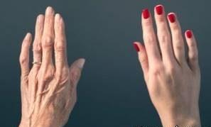 پیر شدن پوست دست