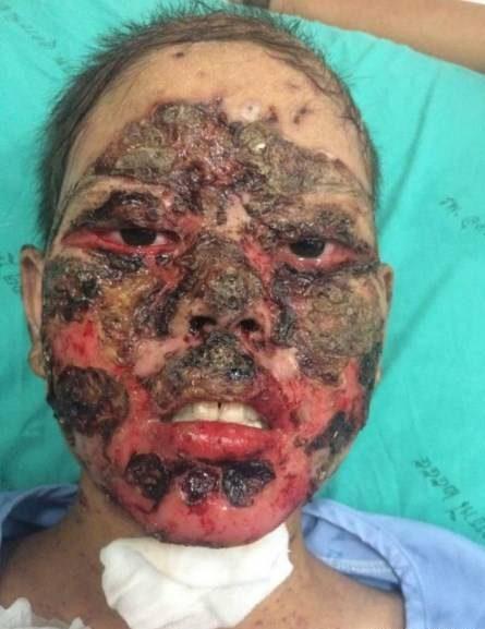 تجویز داروی اشتباه باعث شد صورت دختر از بین برود