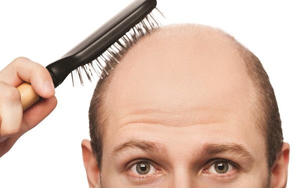 ریزش مو و طاسی