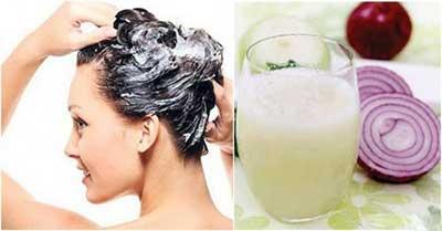 آب پیاز برای جلوگیری از ریزش مو
