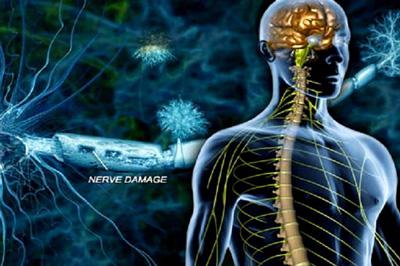 آسیب عصبی