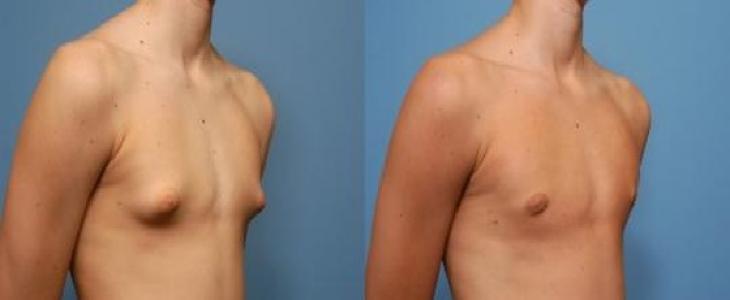 راه های کوچک کردن سینهمردان