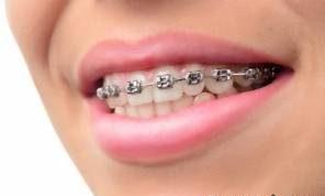 انجام ارتودنسی باعث بیشتر شدن عمر دندان می شود