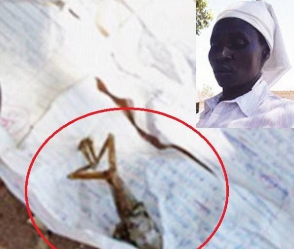 زن باردار بچه ای به شکل قورباغه بدنیا آورد! +عکس