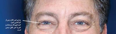 پیر چشمی
