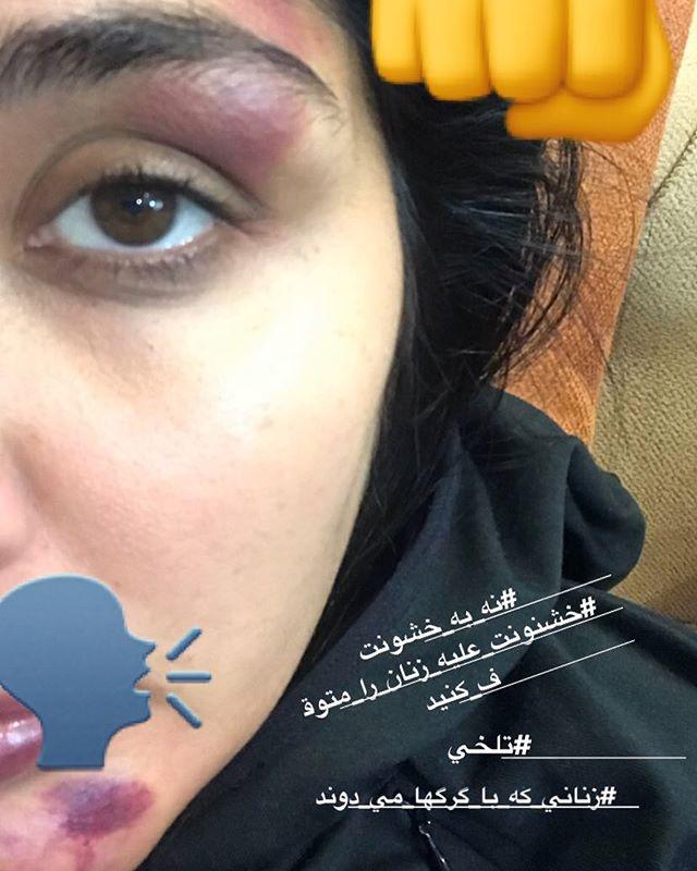 عکس صورت کبود شده مریم معصومی در اثر کتک خوردن توسط مرد غریبه!