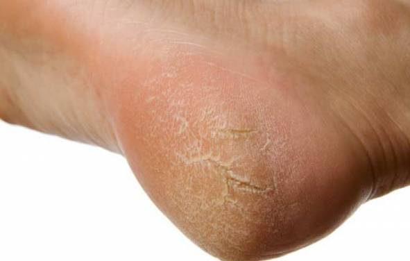 روش های موثر برای از بین بردن ترک کف پا