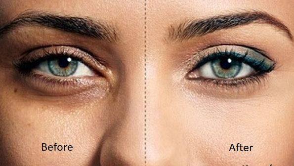 کبودی زیر چشم را با آرایش ناپدید کنید + عکس