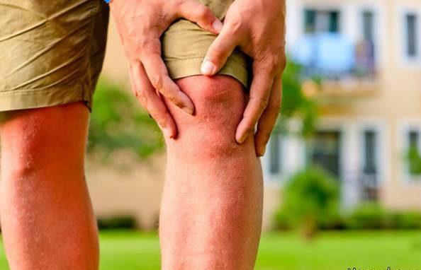 مکمل و غذاهای خوب برای تسکین درد آرتروز