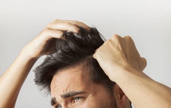 دلیل ریزش مو در 25 سالگی و راه های جلوگیری از ریزش مو
