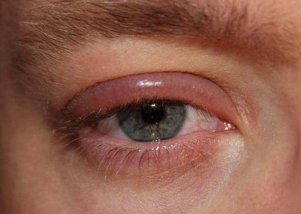 تشخیص بیماری ها از روی رنگ چشم و حالت چشم ها