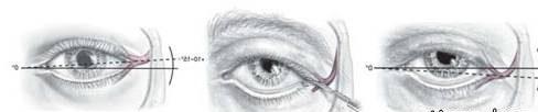 عمل کانتوپلاستی | اطلاعات کامل درم ورد عجل جراحی درشت کردن چشم