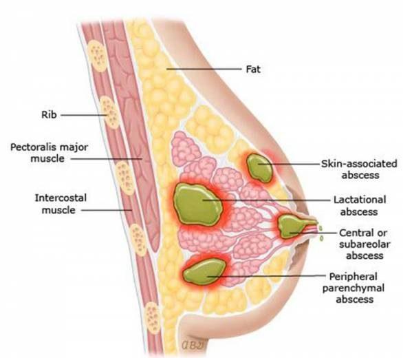 درمان ماستیت و آماس پستان