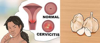 روش گیاهی درمان عفونت واژن