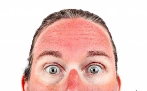 درمان آفتاب سوختگی پوست