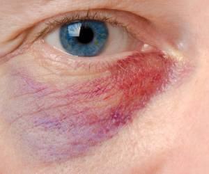 روش های درمان کبودی زیر چشم و از بین بردن کبود بر اثر ضربه