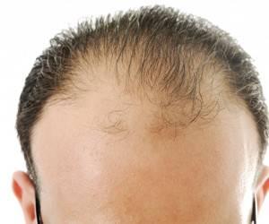 ریزش ارثی مو