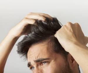 رویش مجدد موهای سر با رعایت کردن این نکات