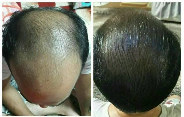 رویش مجدد موهای سر با رعایت کردن این نکات {hendevaneh.com}{سایتهندوانه} - rooyeshe moo 2 - رویش مجدد موهای سر با رعایت کردن این نکات