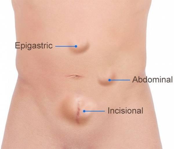 دلیل فتق شکم چیست و چگونه فتق شکم درمان می شود؟