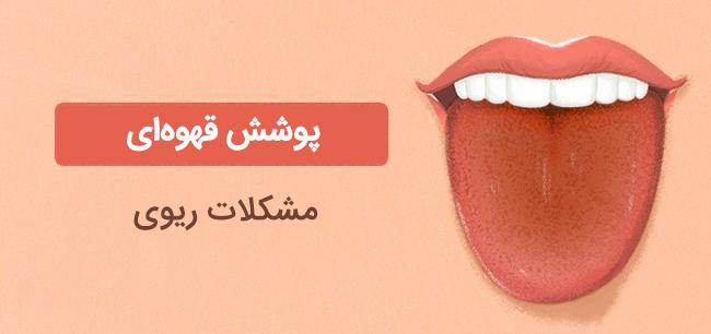 پوشش قهوه زبان
