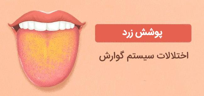 پوشش زرد زبان