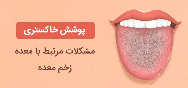 زبان خاکستری رنگ