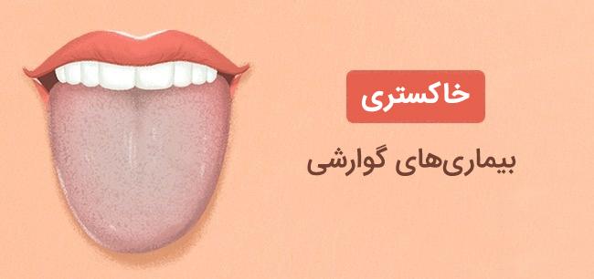 رنگ خاکستری زبان