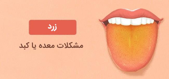 رنگ زبان زرد