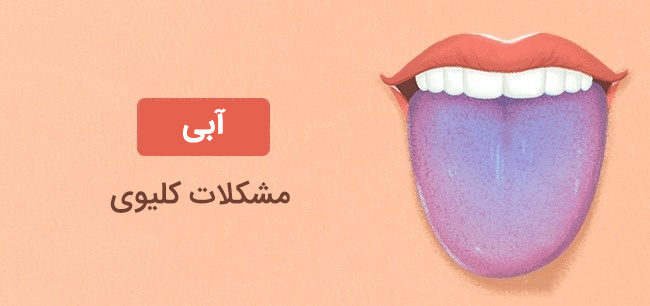رنگ ابی زبان