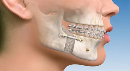 جراحی دهان و فک