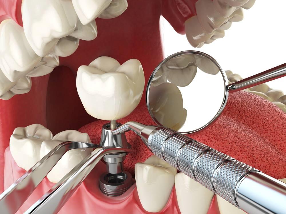فیلم واقعی کاشت دندان و همه چیز درباره ایمپلنت