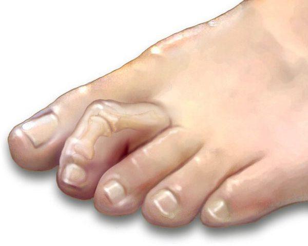 انگشت چکشی پا