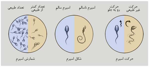 تفسیر آزمایش اسپرم