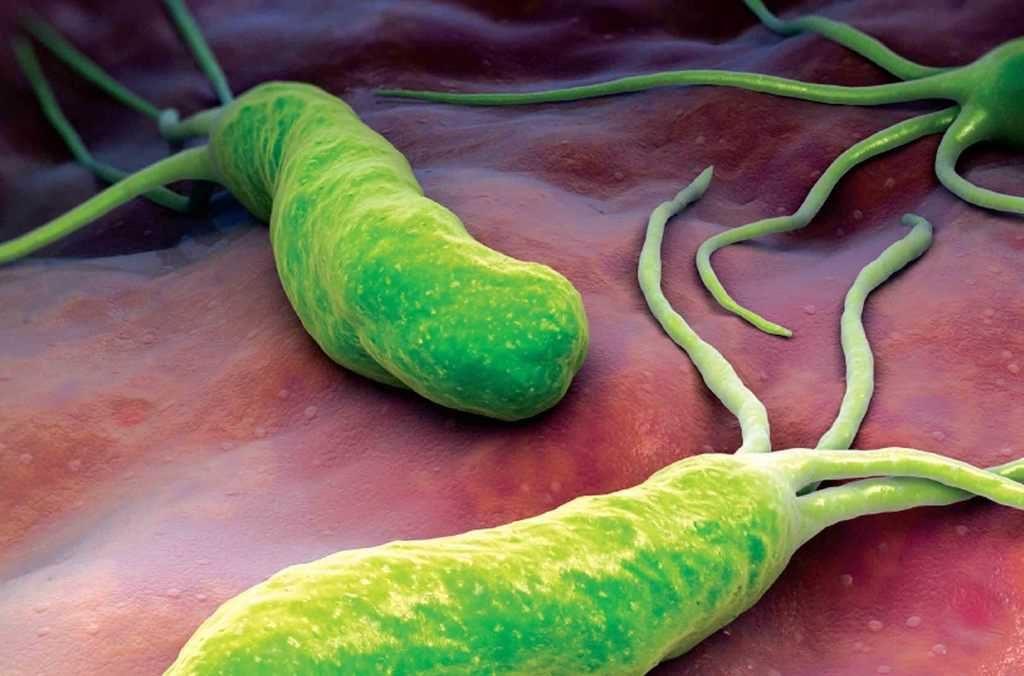 درمان طبیعی هلیکوباکتری پیلوری میکروب معده + روش های شیمایی درمان میکروب