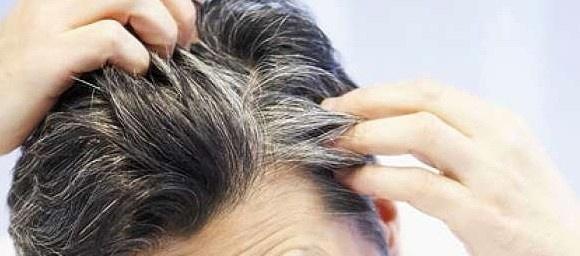 رفع سفیدی مو با مواد غذایی