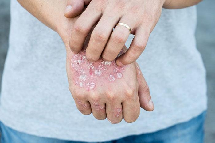 درمان سریع قارچ پوستی