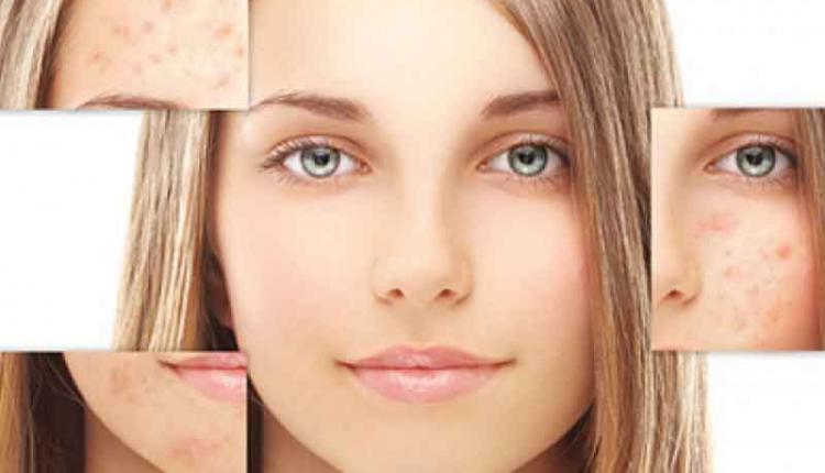 رفع لک صورت + معرفی روش های خانگی برای درمان و از بین بردن لک های صورت