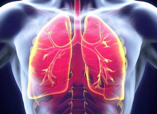 درمان سینه پهلو در خانه