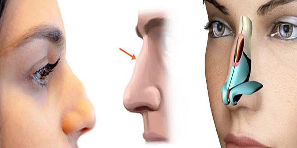 سوهان کشیدن بینی