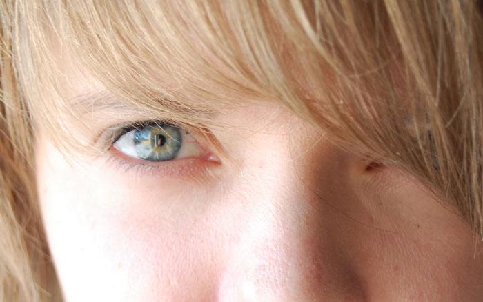 Photo of دلیل زردی چشم ها + آشنایی با روش های طبیعی درمان خانگی