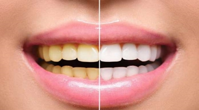 Photo of از بین بردن پلاک های دندان + 10 روش پاکسازی دندان از پلاک و جرم